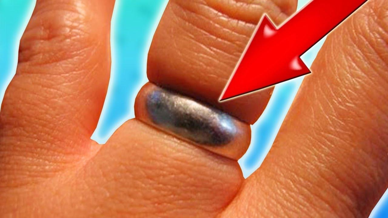 Как снять кольцо с опухшего пальца в  535