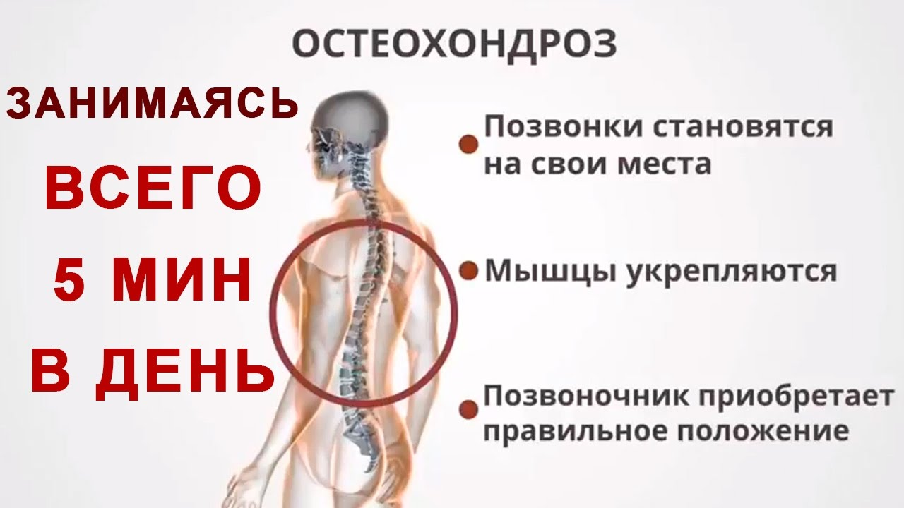 Чем и как лечить остеохондроз позвоночника в домашних условиях 239