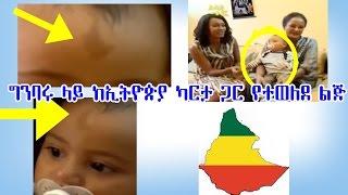 ግንባሩ ላይ ከኢትዮጵያ ካርታ ጋር የተወለደ ልጅ Ethiopian Boy Born with Ethiopian Map imprinted on his Forehead