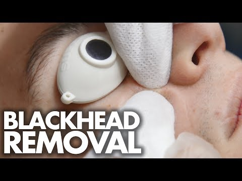 Guy Gets His First FACIAL w/ Blackhead Extractions (Beauty Trippin)