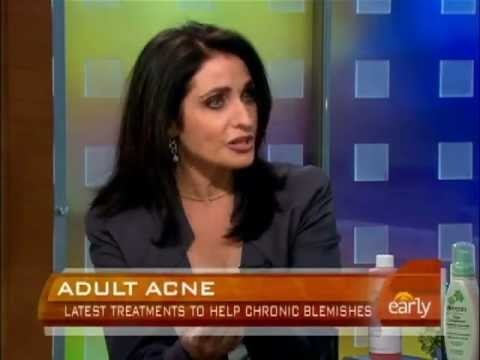 Solutions for Adult Acne