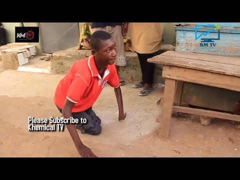 Denis Sarpong, My Parents rejected me because of my conditions (SAD STORY)