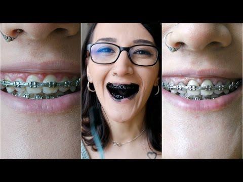 Diş Beyazlatan Siyah Toz Işe Yarıyor mu?  Carbon Coco