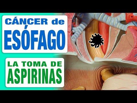 Cáncer de Esófago y Aspirina