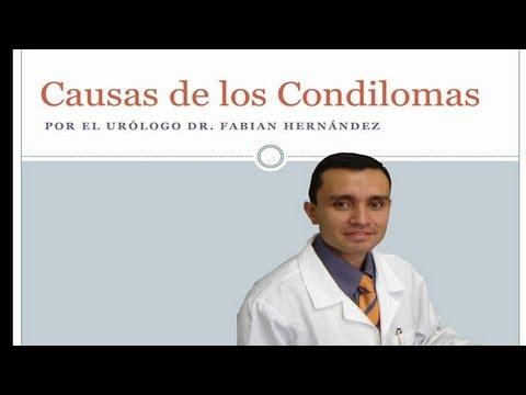 Causas del Papiloma Humano en Mujeres y Hombres - Condilomas en el Pene - Causas y Riesgos VPH