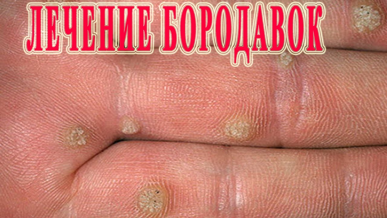 Бородавки на руках лечение в домашних условиях отзывы