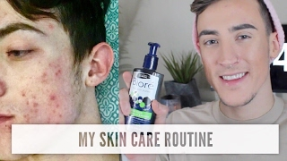 MY SKIN CARE ROUTINE | HOW TO CLEAR ACNE & CYSTIC ACNE