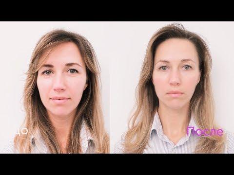 Хиромассаж лица (до и после процедуры)