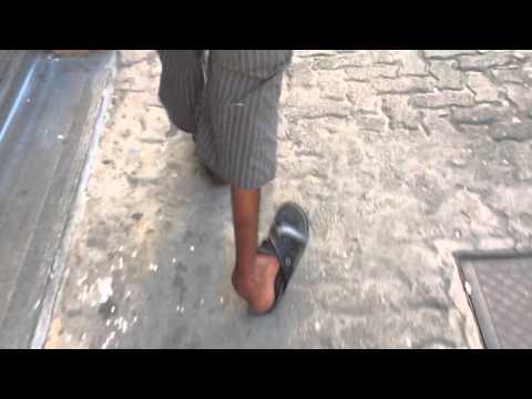 Homem com polio 14 / Polio man 14