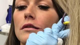 Rehaussement des lèvres à la microcanule