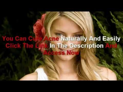 How to Cure Acne - Easy Steps to Cure Acne - cure acne
