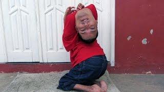 Meet The Man Born His Head Upside Down - Body Bizarre