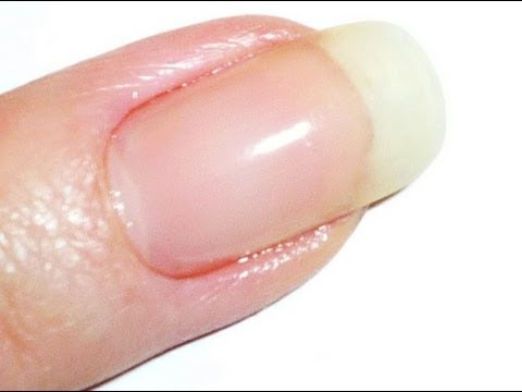 How to use the Vitagel LED/UV cured Gel to Repair Cracked Nails