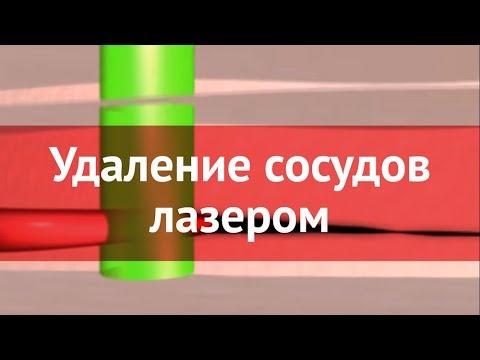 Лазерное удаление капилляров и сосудов