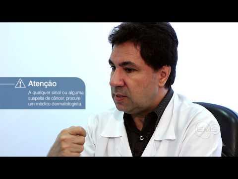 Canal EMS Genéricos - Tratamento tumores da pele pré-cancerosos e cancerosos