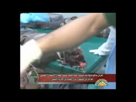 The effects of NATO bombing on civilians in Libya