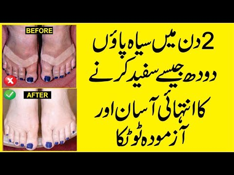 Instant Feet Whitening Tip | Feet Whitening Home Remedies | Skin Care Tips | Beauty Tips in Urdu