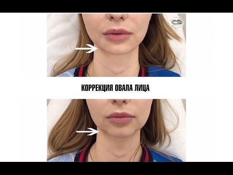 Коррекция овала лица препаратами ГК
