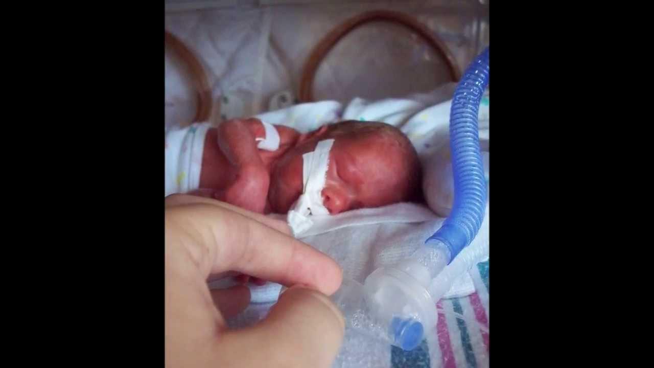 33 неделя родился фото ребенка