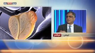 تطوير علاج لمكافحة سرطان البروستات