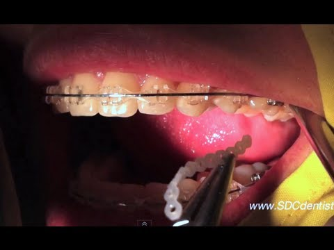 เชนจัดฟันของคนจัดฟันแบบใส ( Ceramic Braces )