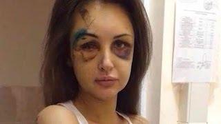 Model Brutally Beaten By Boyfriend, Now Looks Like Zombie