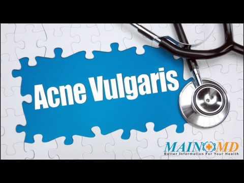 Acne Vulgaris ¦ Treatment and Symptoms