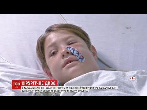 У США лікарі врятували хлопчика, якому шампур для м'яса пробив голову