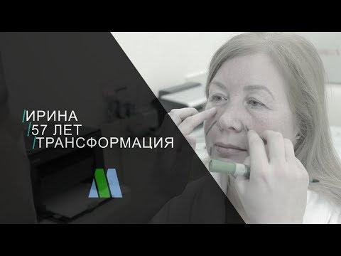 Подтяжка лица. История Ирины - трейлер
