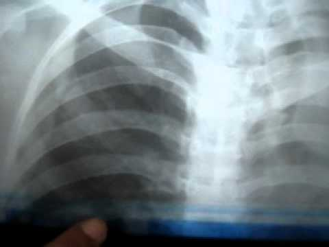 how to count ribs on chest X-ray