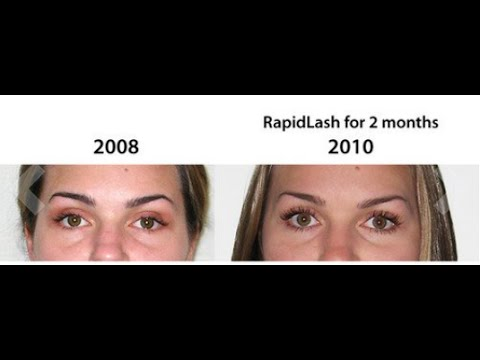 Rapidlash Eyelash Enhancing Serum Reviews –Awesome Eyelash Growth Products
