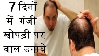 Balo ko fir se kaise ugaye hindi me, दोबारा से बालों को उगाए | how to hair regrowth