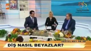 Ibrahim Saraçoğlu  Diş Beyazlatma