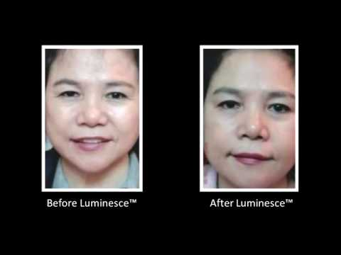 Jeunesse Global LUMINESCE Cellular Rejuvenation Serum Amazing Before   After Photos