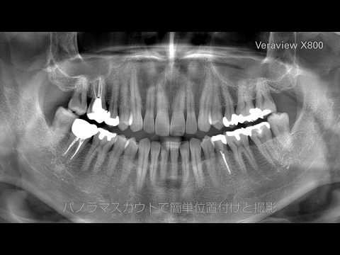 Veraview X800 プロモーションビデオ