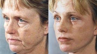 Natural Facelift Facial Exercises  Lip Plumper   Get Full, Beautiful Lips with Faceworks