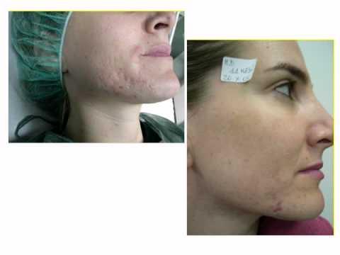 CICATRICI POST ACNEICHE ( acne scars) e LASER ERBIUM ( tecnologia SMOOTH ). Dr. Ivano Luppino