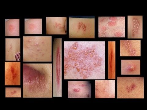 Genital Herpes Symptoms Men and Women - Home Testing - Herpes ...