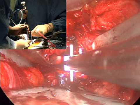 ProDisc-L Surgical Video L4-L5