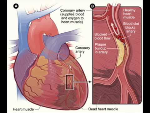 HEART DISEASES & PAKISTAN , HEALTH EDUCATION , INFECTION CONTROL (ICSP) , URDU / HINDI . PART 1 OF 2