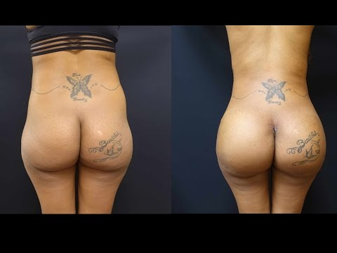 Butt Augmentation with 712cc Implants and Fat Transfer to her Hips!