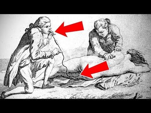 13 Медицинских Процедур, Которые Должны Навсегда Остаться в Прошлом