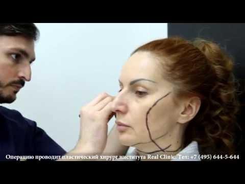 Подтяжку лица (SMAS-lifting) в проекте BEAUTY EXPERTIZA проводит пластический хирург Георгий Чемянов