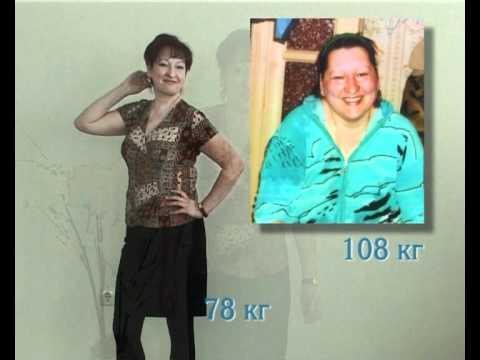 До и после похудения живота