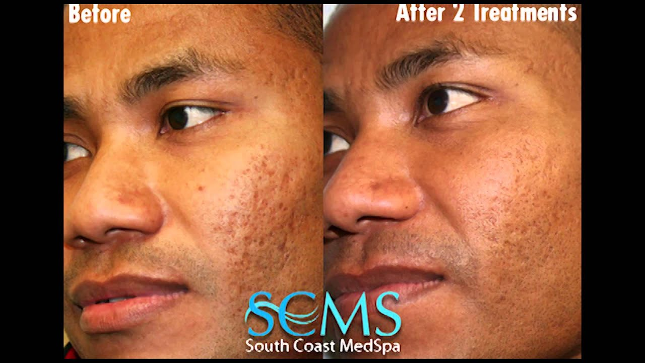 Before/After African American Male Laser Acne Scar Removal Results ...