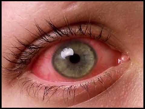 Как сделать белки глаз красные 397