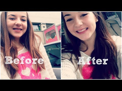 Braces 101 - Before and After