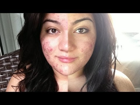 SEVERE Acne Transformation Video [NOT FOR THE WEAK HEART] Before & After Accutane