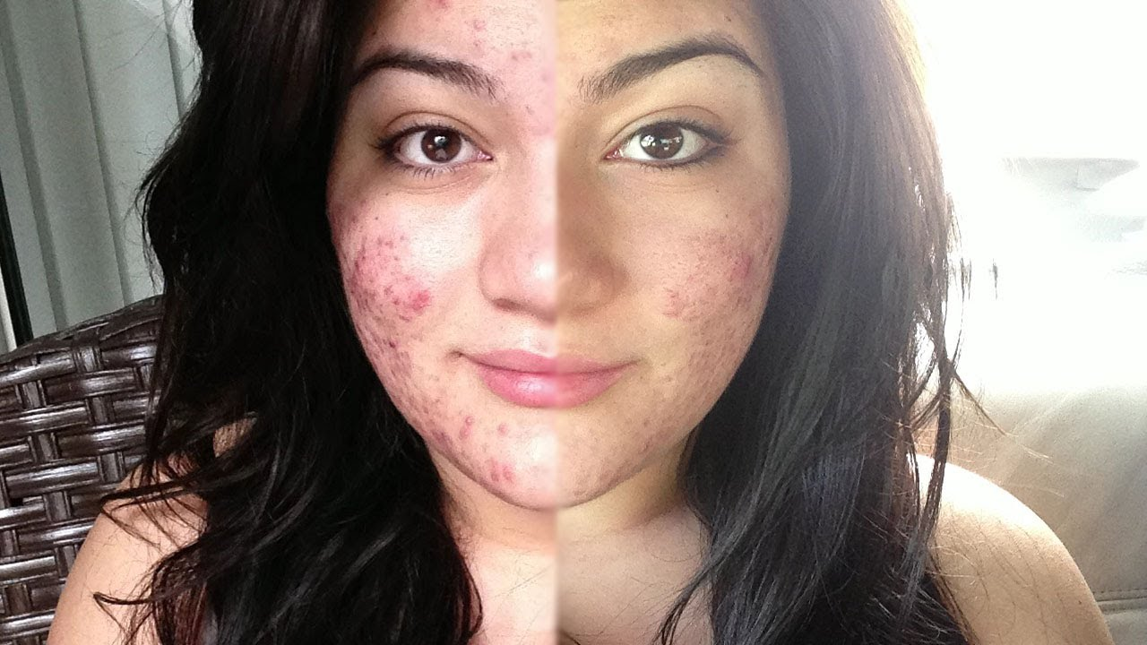 acne breakout after steroids