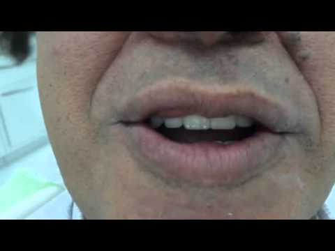 SameDay Dental Implants Testimonials. Dubai Healthcare City